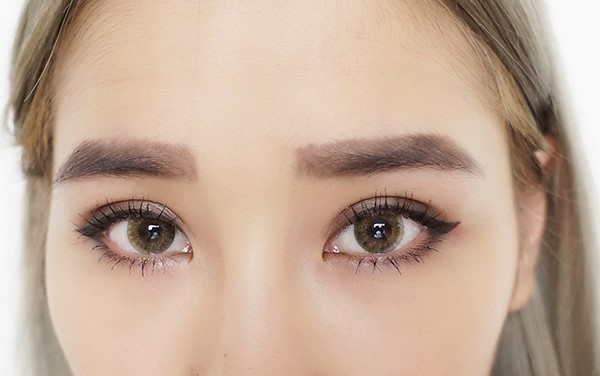 Double eyelid surgery blog reviews by Singapore bloggers